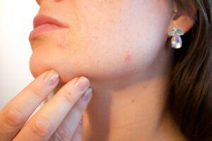 Co powinniśmy wiedzieć o trądziku kosmetycznym